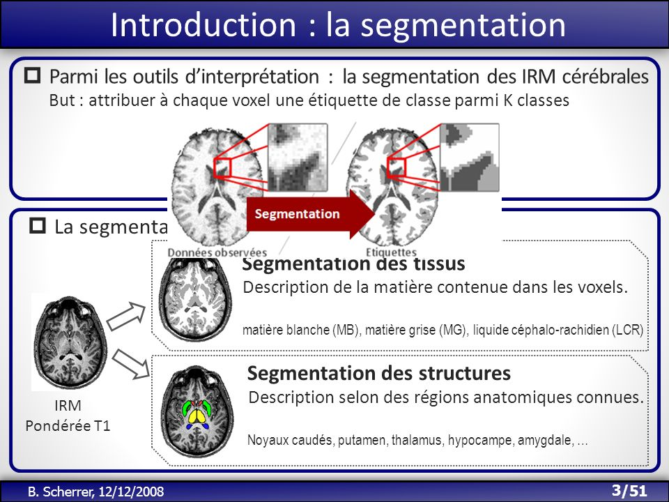Introduction : la segmentation