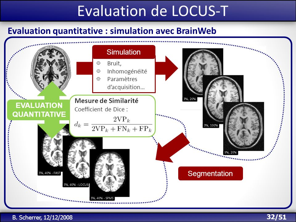 Evaluation de LOCUS-T Evaluation quantitative : simulation avec BrainWeb. Simulation. Bruit, Inhomogénéité.