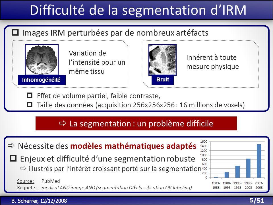 Difficulté de la segmentation d'IRM