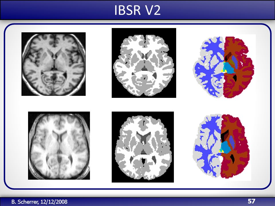 IBSR V2 B. Scherrer, 12/12/2008
