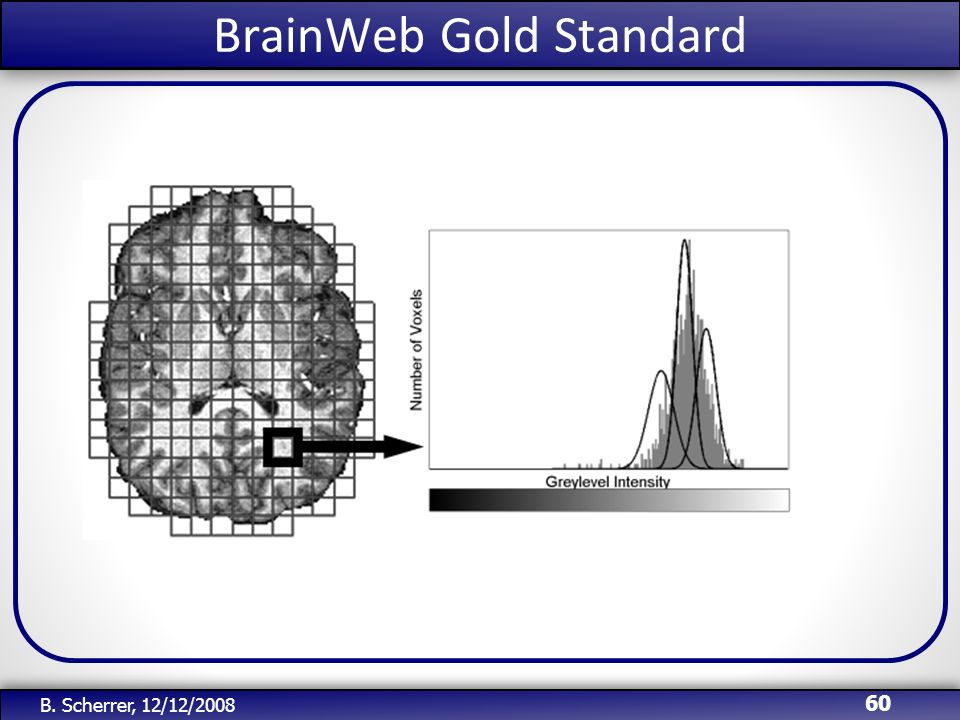 BrainWeb Gold Standard