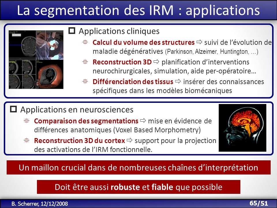 La segmentation des IRM : applications