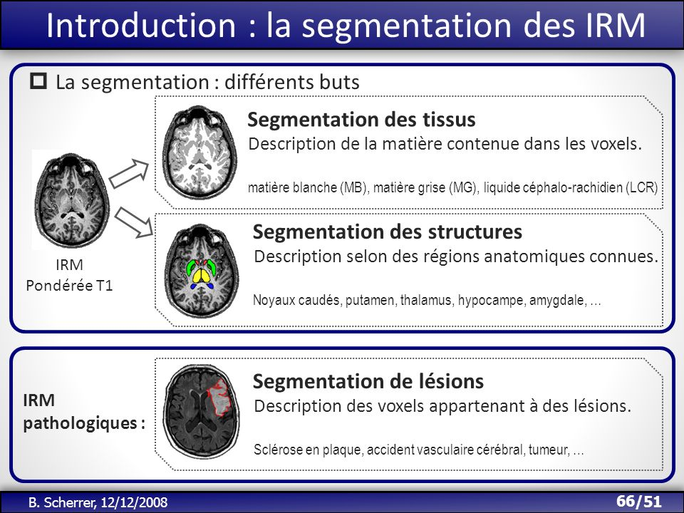 Introduction : la segmentation des IRM