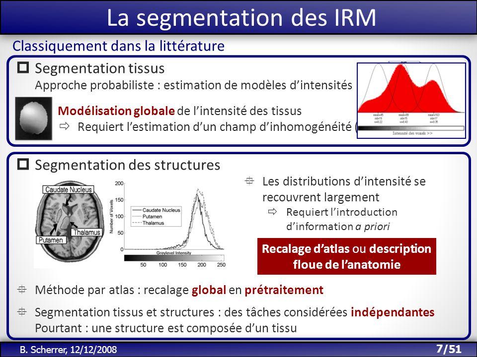 La segmentation des IRM