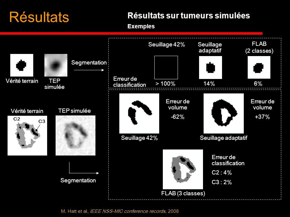 Résultats Résultats sur tumeurs simulées Exemples Seuillage 42%