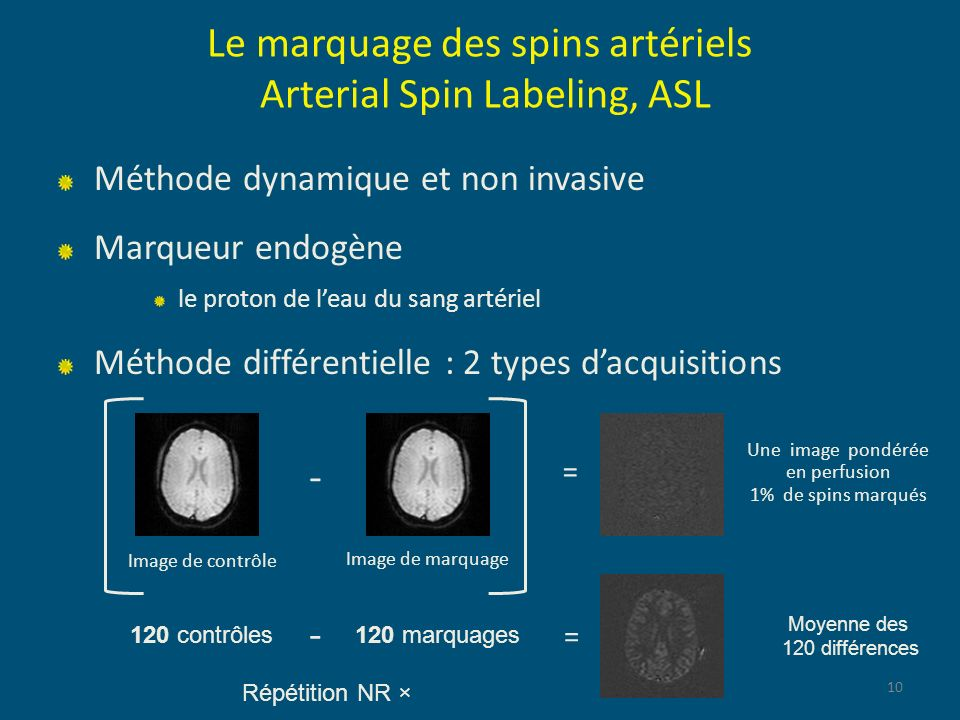 Le marquage des spins artériels Arterial Spin Labeling, ASL