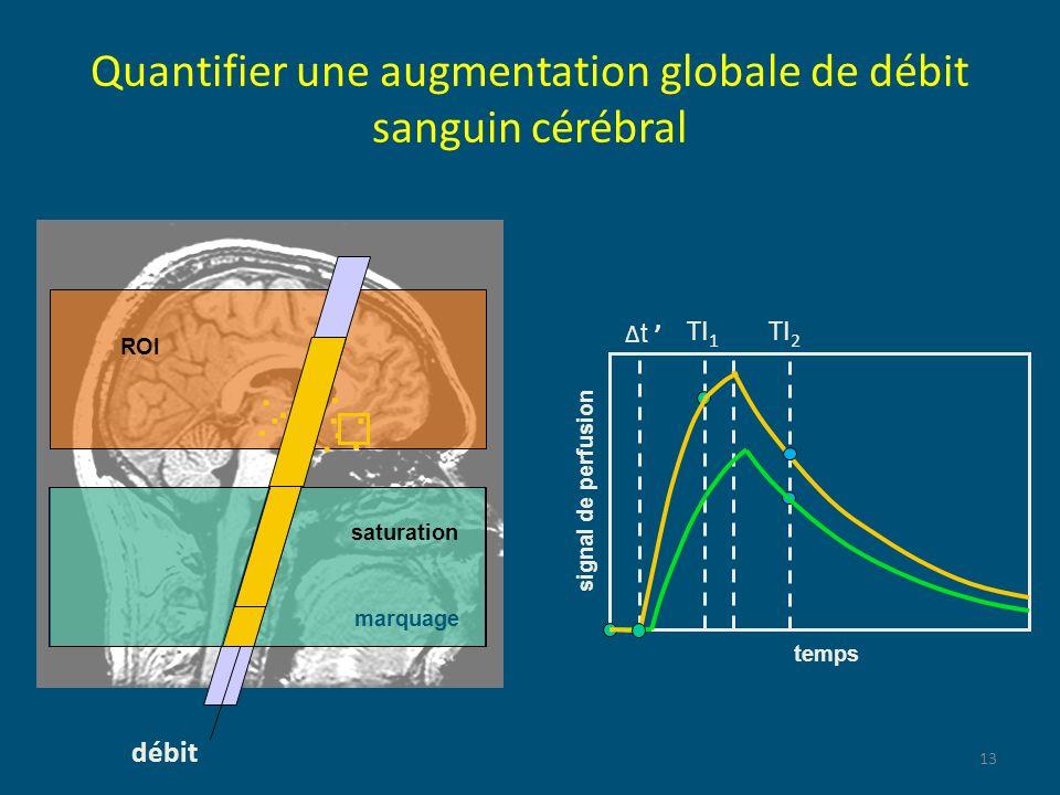 Quantifier une augmentation globale de débit sanguin cérébral
