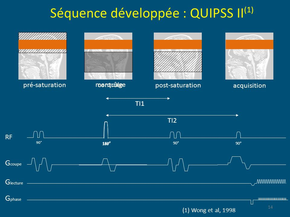 Séquence développée : QUIPSS II(1)