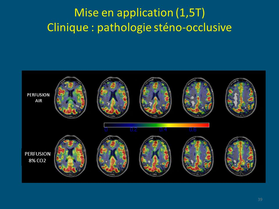 Mise en application (1,5T) Clinique : pathologie sténo-occlusive