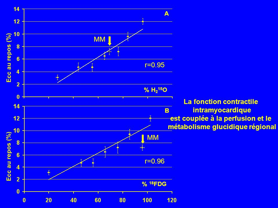 La fonction contractile intramyocardique