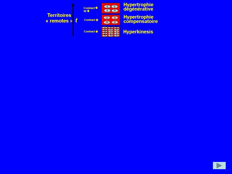 t dégénérative Territoires Hypertrophie « remotes » compensatoire