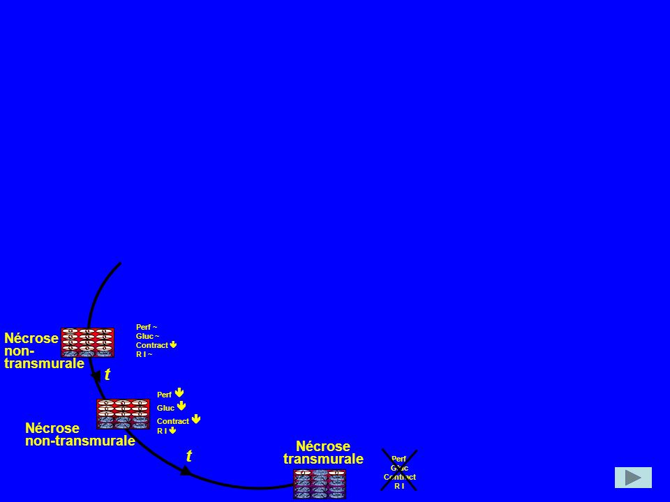 t Nécrose non-transmurale transmurale Perf ~ Gluc ~ Contract  R I ~