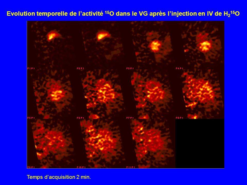 Evolution temporelle de l'activité 15O dans le VG après l'injection en IV de H215O