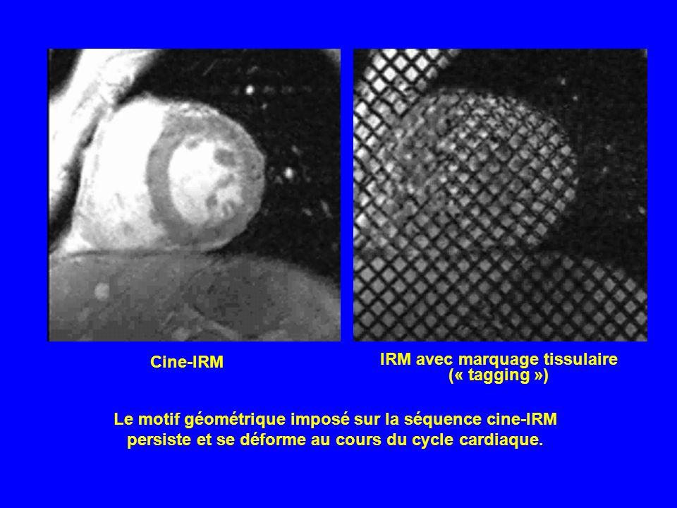 IRM avec marquage tissulaire (« tagging »)
