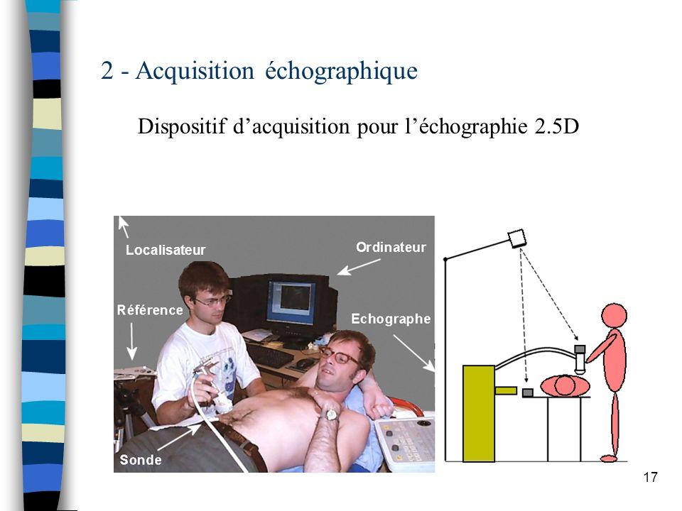 2 - Acquisition échographique