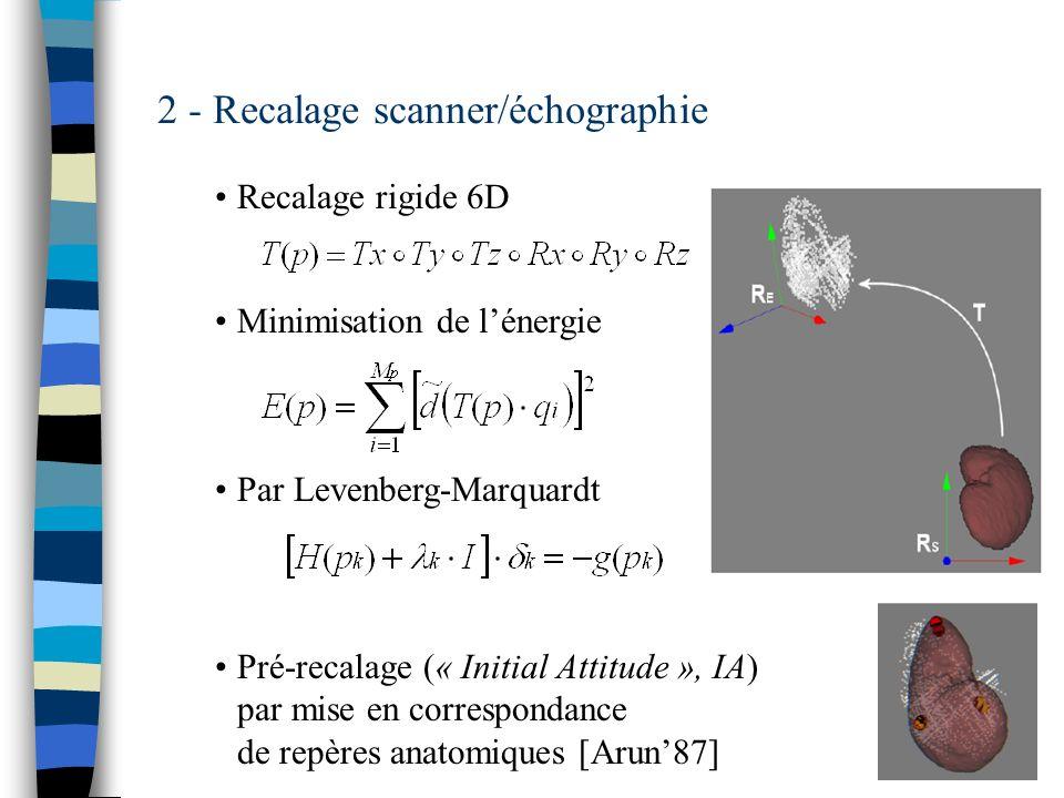 2 - Recalage scanner/échographie