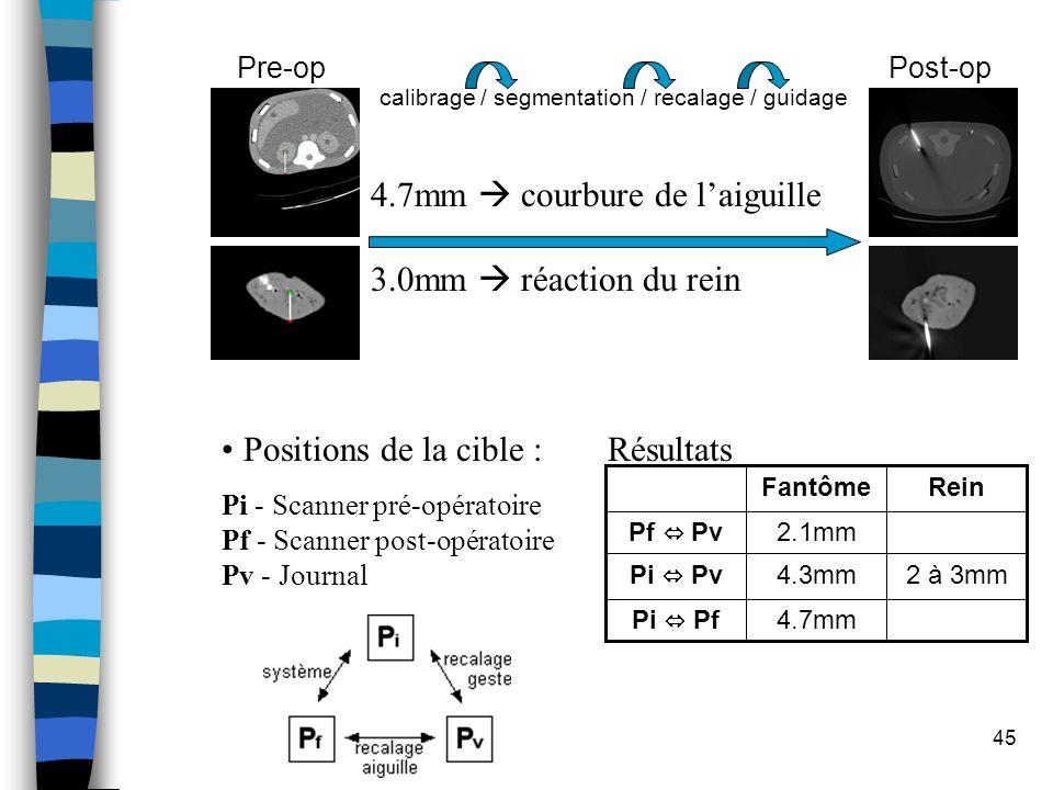 4.7mm  courbure de l'aiguille 3.0mm  réaction du rein
