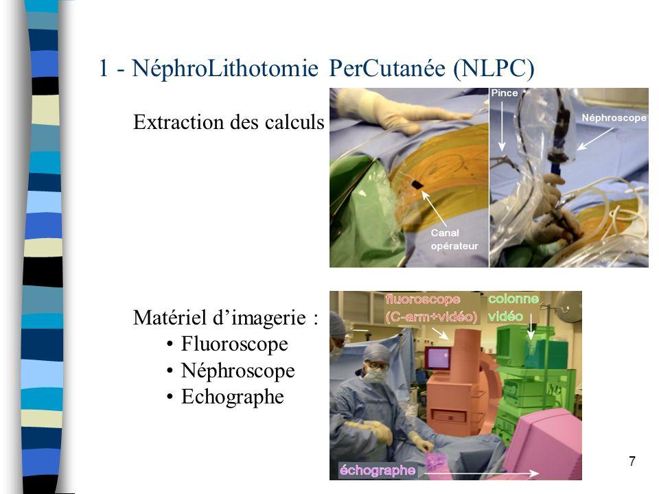 1 - NéphroLithotomie PerCutanée (NLPC)