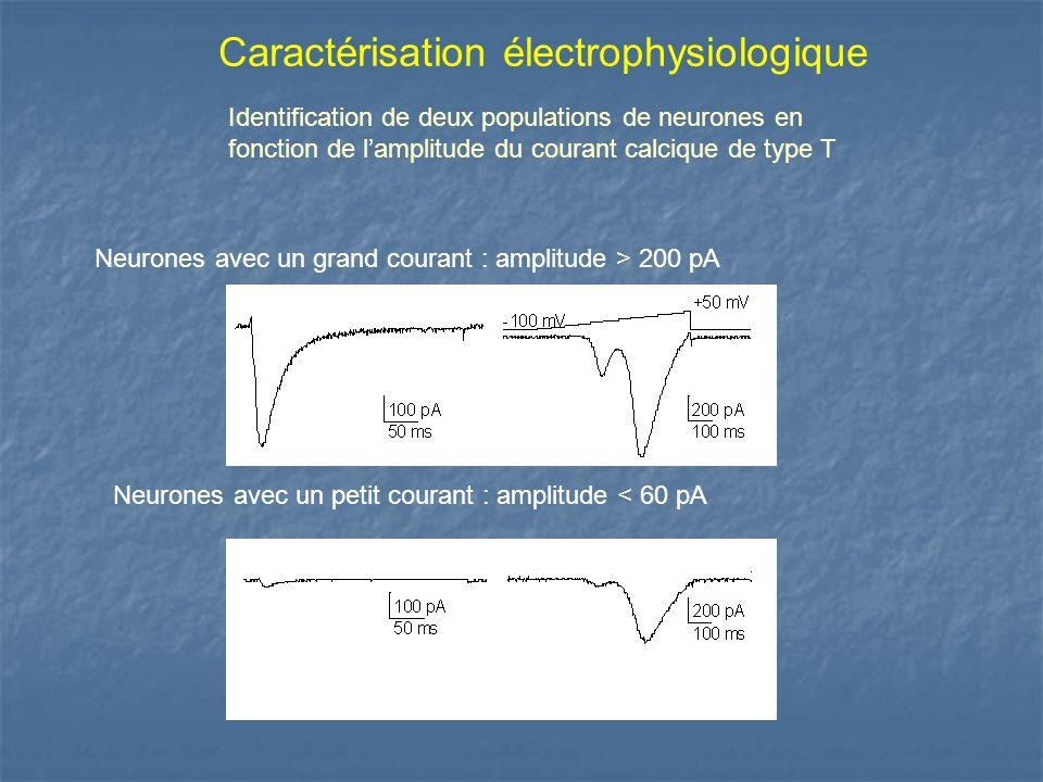 Caractérisation électrophysiologique