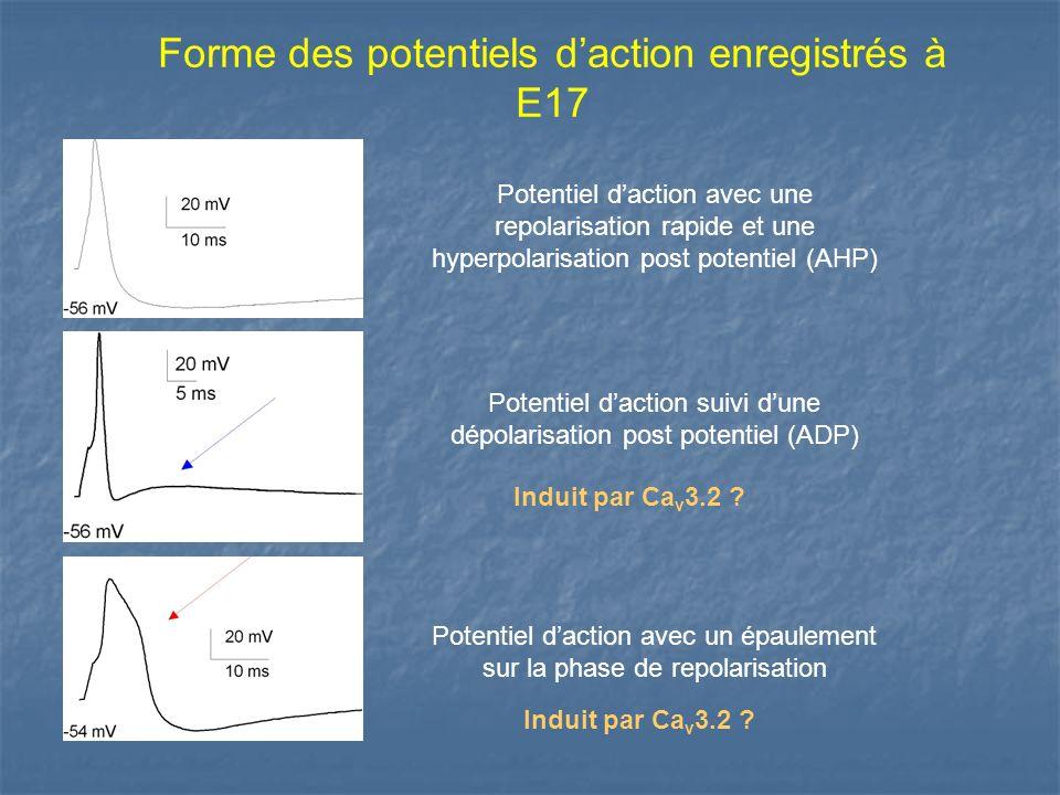 Forme des potentiels d'action enregistrés à E17