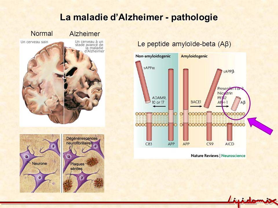 La maladie d'Alzheimer - pathologie