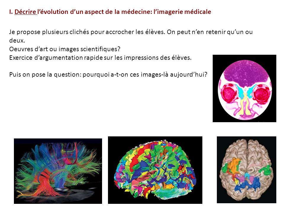 I. Décrire l'évolution d'un aspect de la médecine: l'imagerie médicale