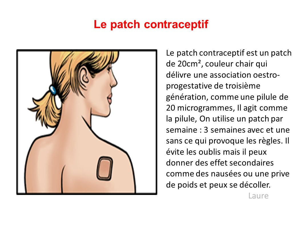 Le patch contraceptif