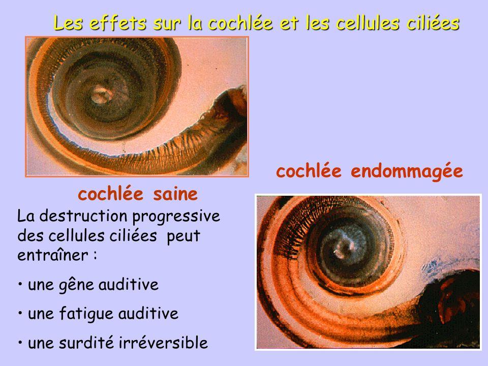 Les effets sur la cochlée et les cellules ciliées
