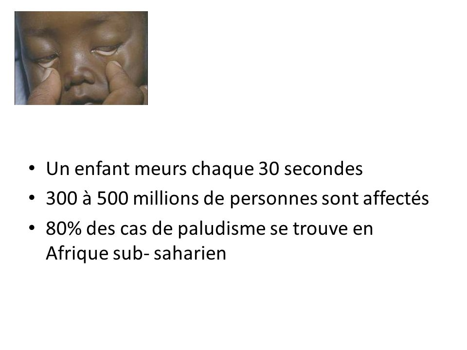 Un enfant meurs chaque 30 secondes
