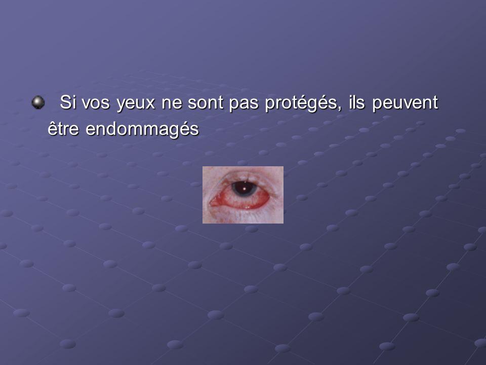 Si vos yeux ne sont pas protégés, ils peuvent être endommagés