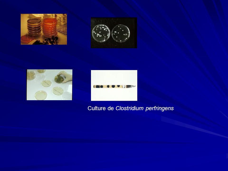 Culture de Clostridium perfringens