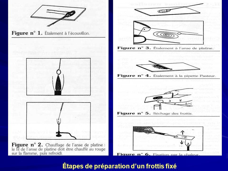Étapes de préparation d'un frottis fixé