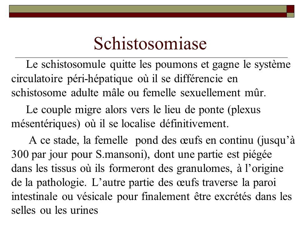 Schistosomiase