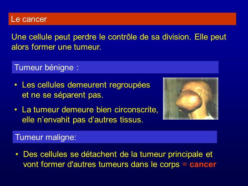 Le cancer Une cellule peut perdre le contrôle de sa division. Elle peut alors former une tumeur. Tumeur bénigne :