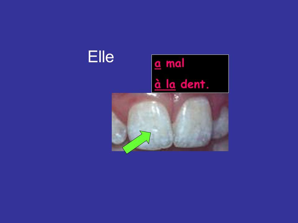 Elle a mal à la dent. http://www.fluoridation.com/images/teeth2.jpg