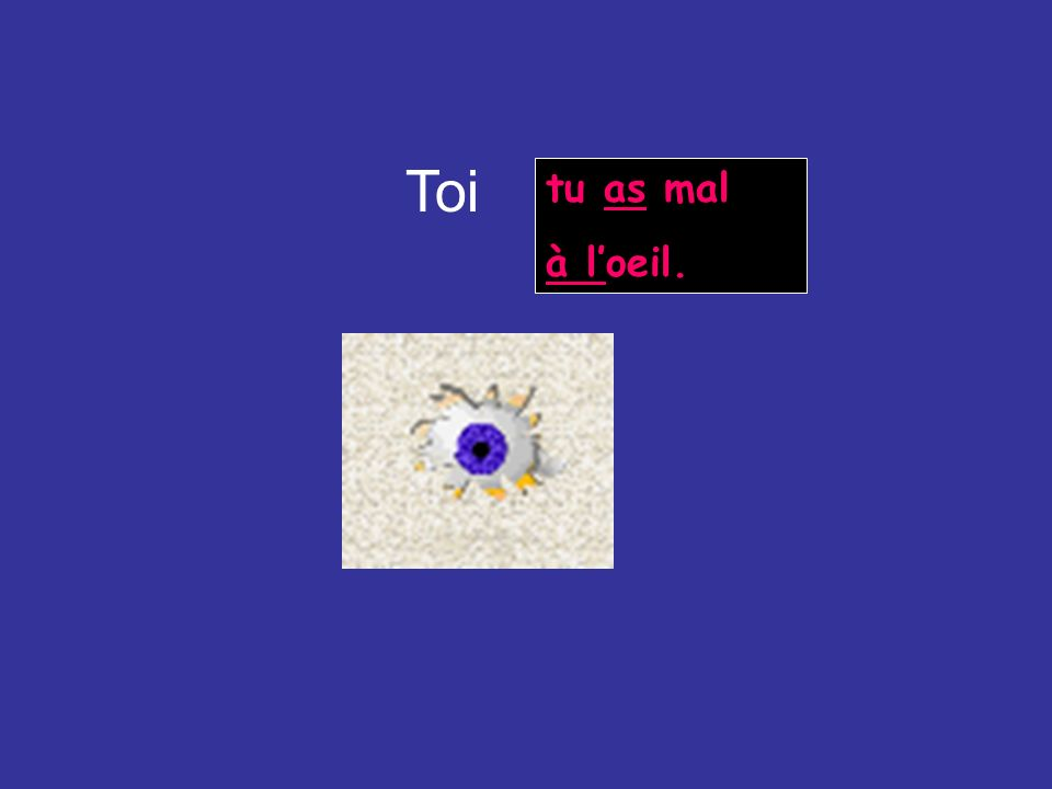 Toi tu as mal à l'oeil.