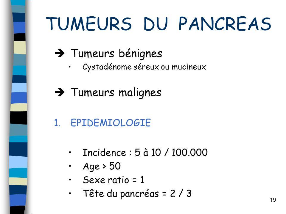 TUMEURS DU PANCREAS Tumeurs bénignes Tumeurs malignes EPIDEMIOLOGIE