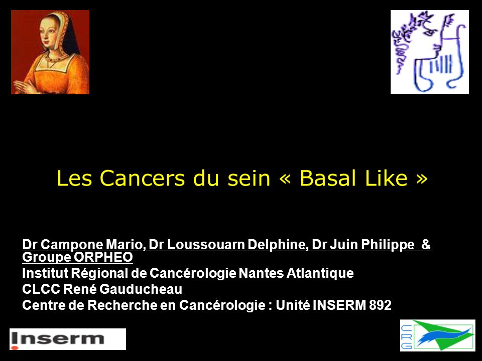 Les Cancers du sein « Basal Like »
