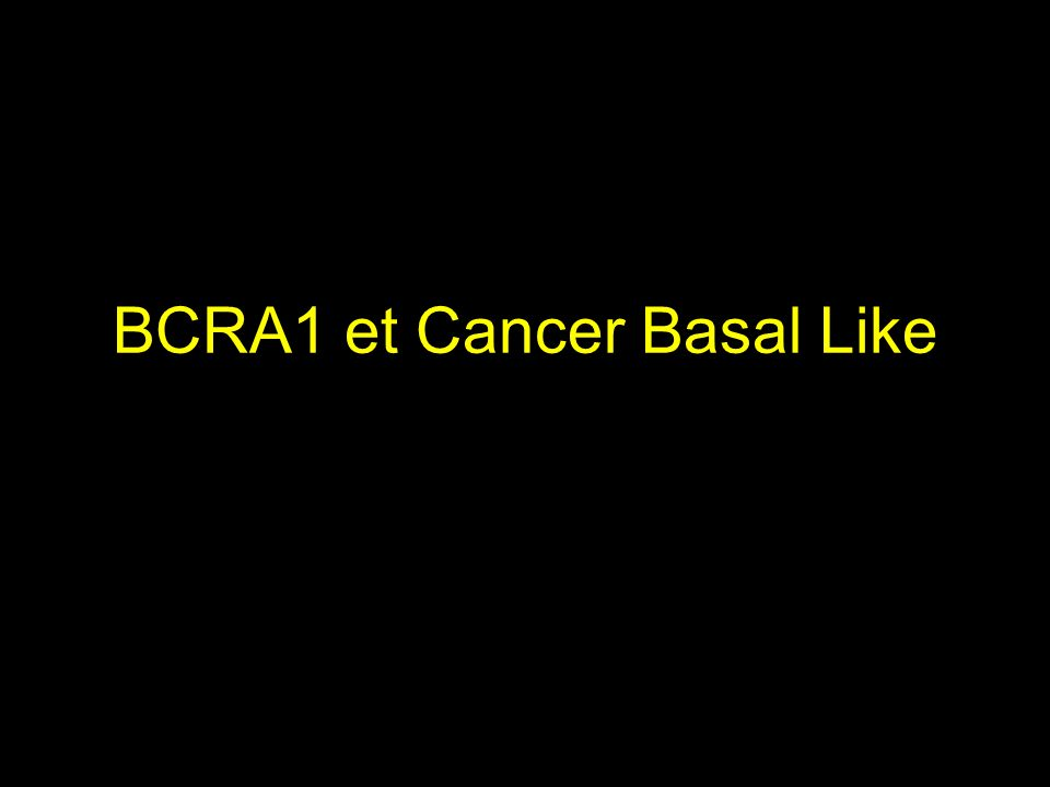 BCRA1 et Cancer Basal Like