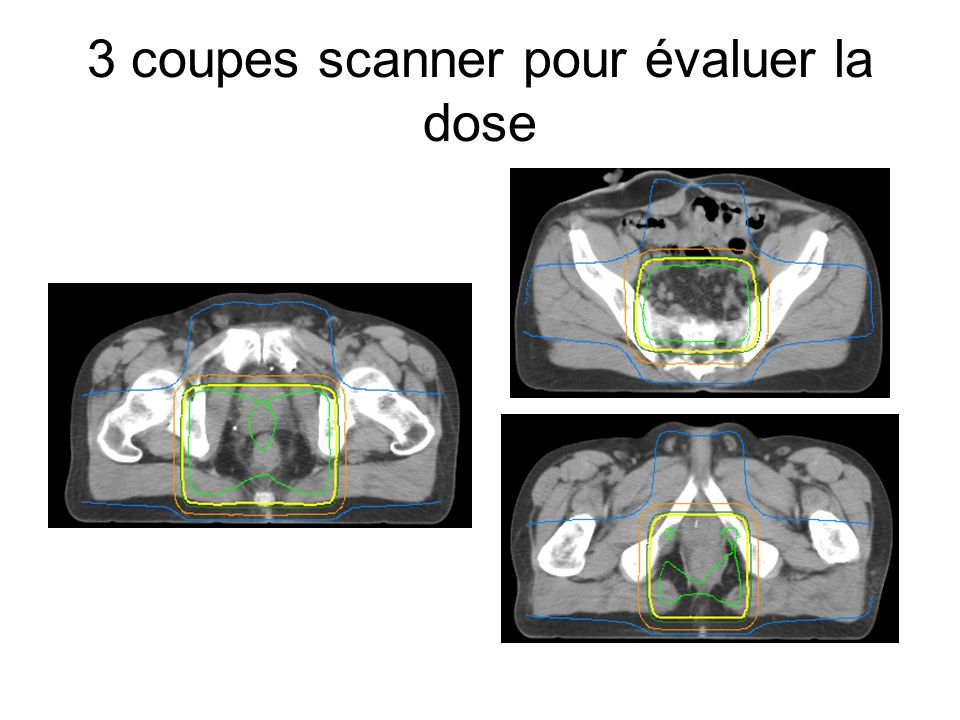 3 coupes scanner pour évaluer la dose