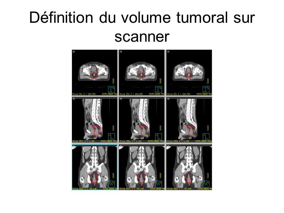 Définition du volume tumoral sur scanner