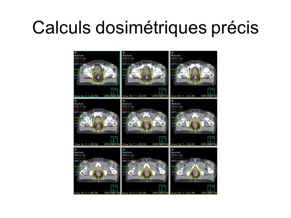 Calculs dosimétriques précis