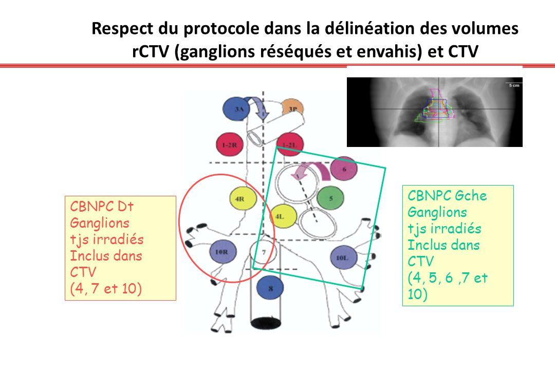 Respect du protocole dans la délinéation des volumes rCTV (ganglions réséqués et envahis) et CTV