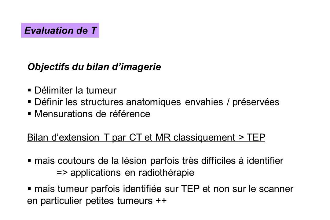 Evaluation de T Objectifs du bilan d'imagerie. Délimiter la tumeur. Définir les structures anatomiques envahies / préservées.
