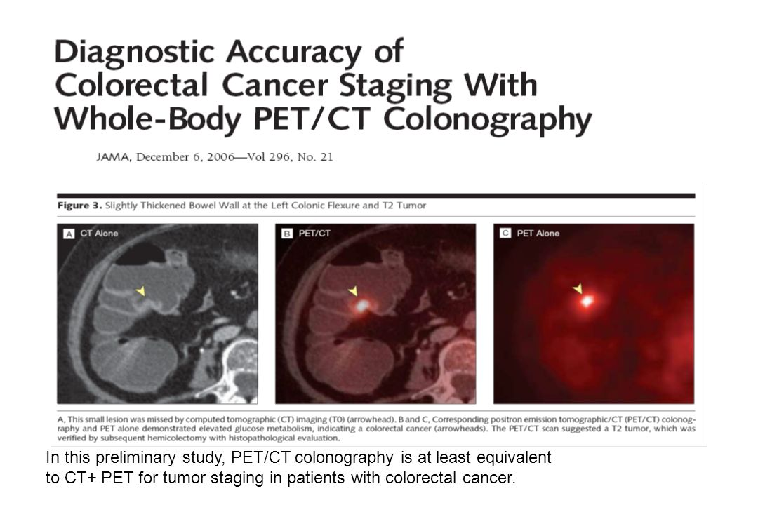 In this preliminary study, PET/CT colonography is at least equivalent