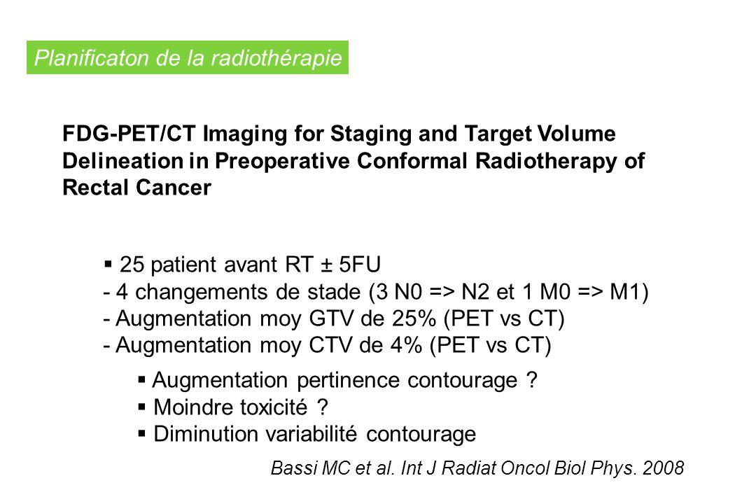 Planificaton de la radiothérapie