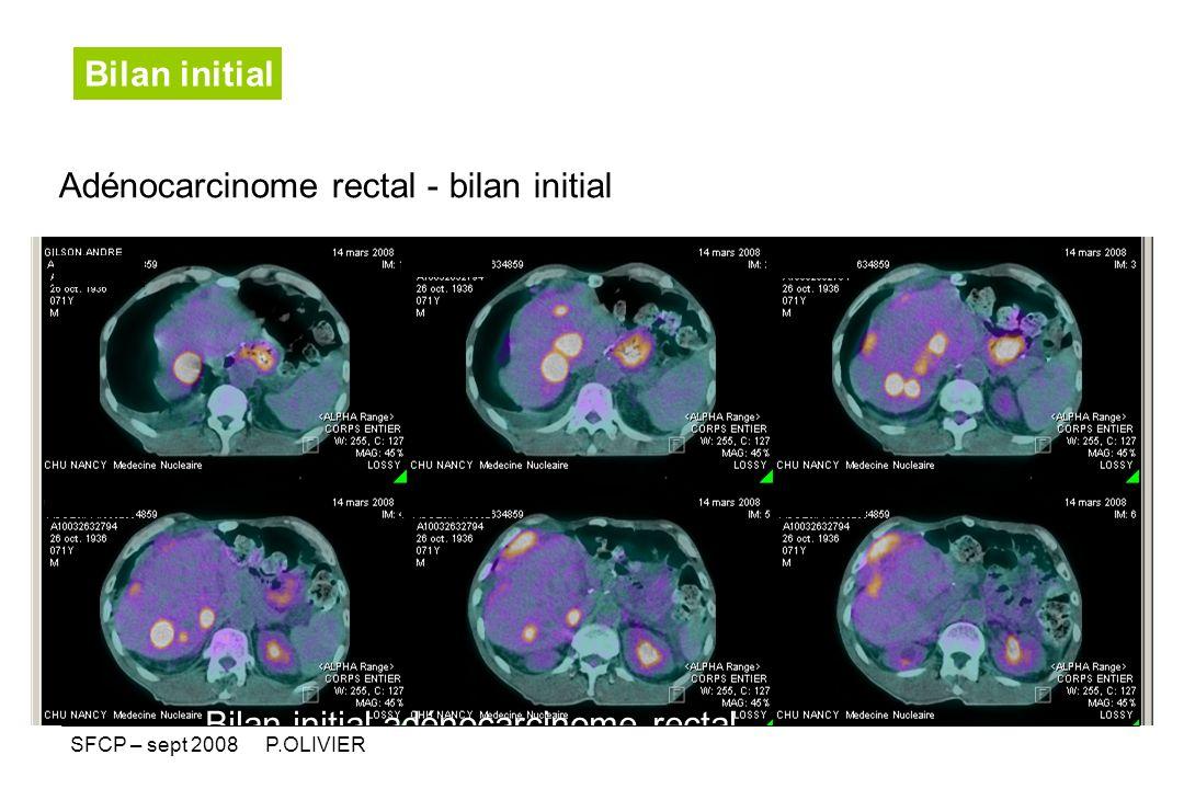Adénocarcinome rectal - bilan initial