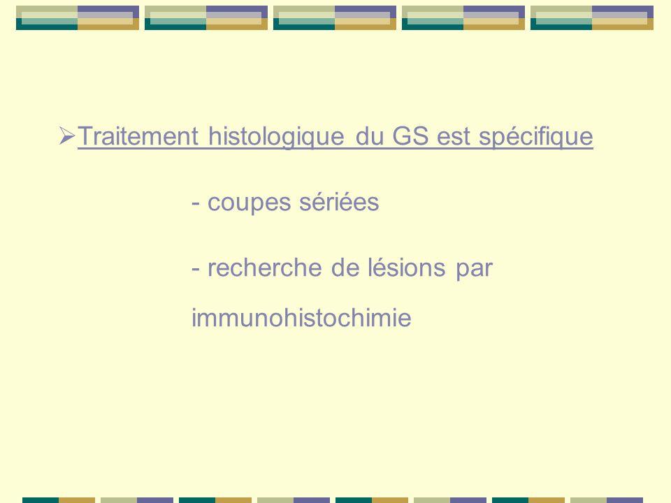 Traitement histologique du GS est spécifique