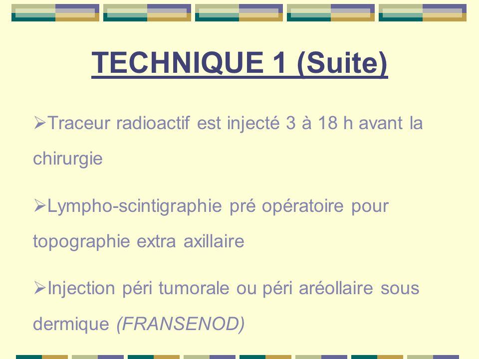 TECHNIQUE 1 (Suite) Traceur radioactif est injecté 3 à 18 h avant la chirurgie. Lympho-scintigraphie pré opératoire pour topographie extra axillaire.