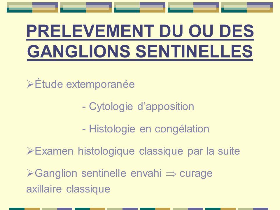 PRELEVEMENT DU OU DES GANGLIONS SENTINELLES